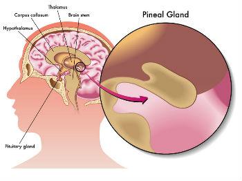 dysfonctionnement de la glande pinéale et maladie neurologiques